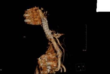 נהריה: ניתוח חדשני הציל בת 78